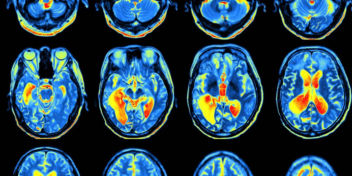 Brain scans of the same brain across 12 different scans showing different areas lighting up in the Magnetic Resonance Imaging.